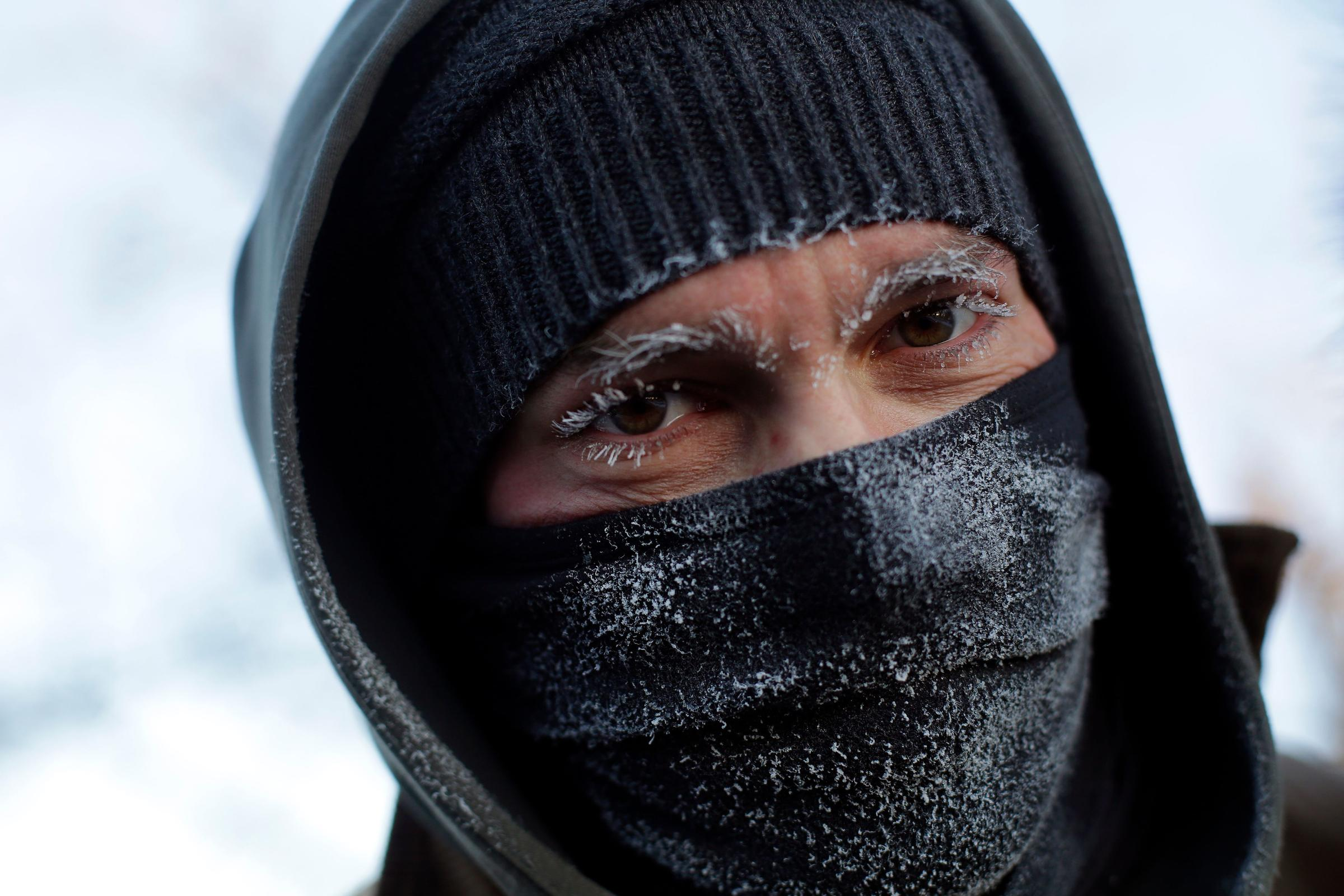 Medical effects of extremely low temperatures: why they hurt and how do we prevent the damage?